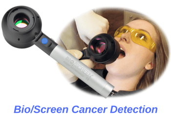 oral-cancer-screening-orange-county