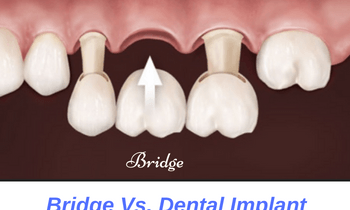 bridge-versus-dental-implant