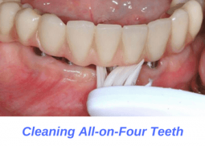 Cleaning-all-on-four-implants
