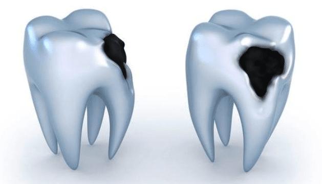 dental-cavities