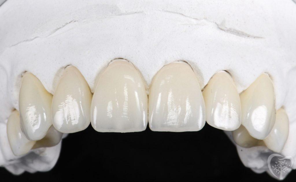 cosmetic-dental-crowns