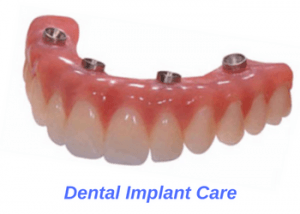 cleaning-dental-implants