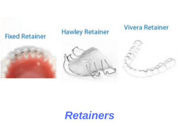 Orthodontic Retainers Oceansight Dental Implants