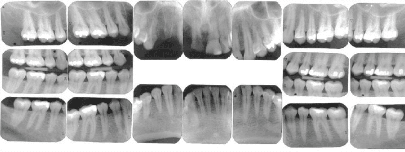 Periapical-bitewing-xrays