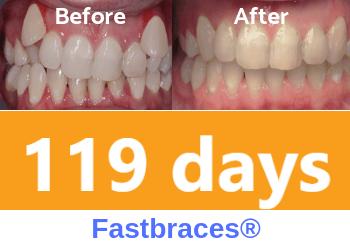fastbraces-teeth-crowding