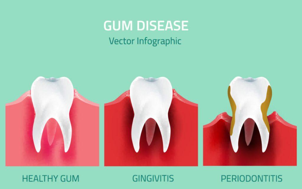 gum-disease-gingivitis-periodontitis
