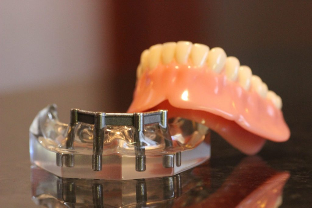 Implant-supported-denture-bar