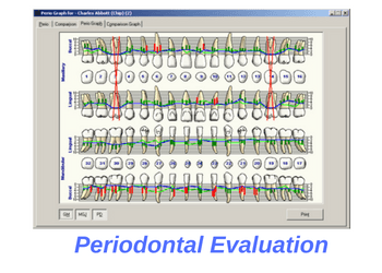dental-cleaning-periodontal-evaluation