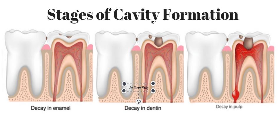 satges-dental-cavity