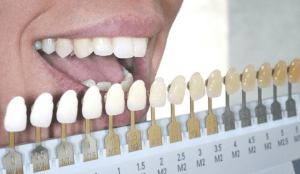 Teeth-whitening-candidate