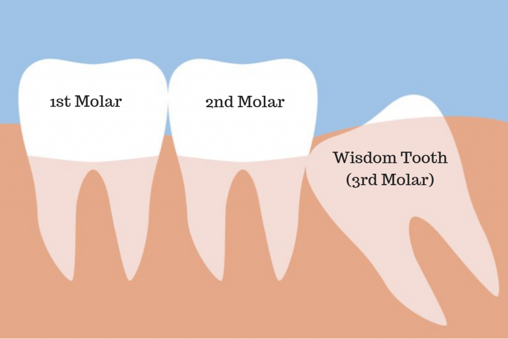 Impacted-wisdom-teeth