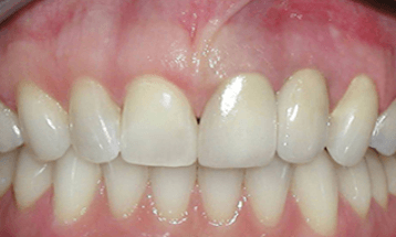 after-dental-bridge