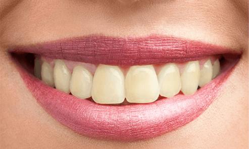before-teeth-whitening