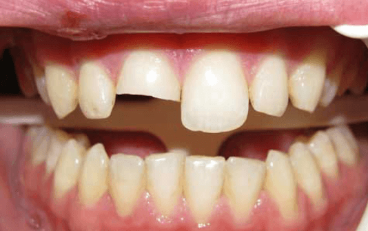 dental-bonding-limitations