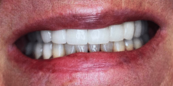 full-mouth-reconstruction-after-1-san-clemente