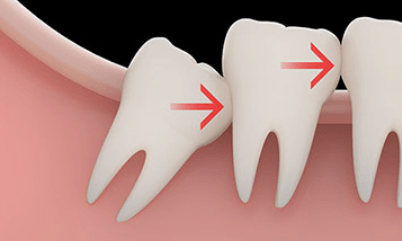 impacted-wisdom-teeth-crowding