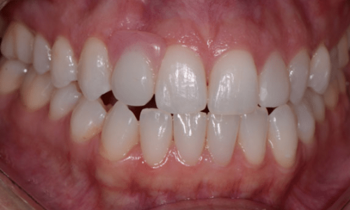 invisalign-after1