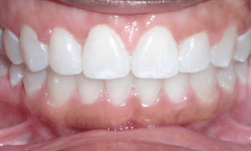 invisalign-after3