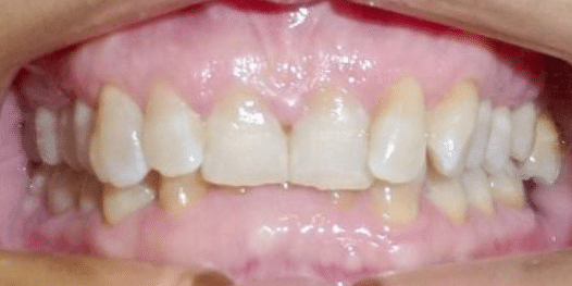 invisalign-before-3-san-clemente