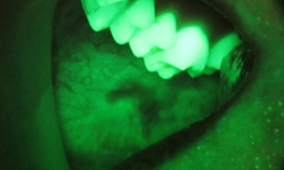 oral-cancer-bio-screen