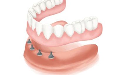 overdenture-four-implants