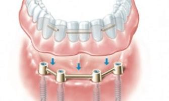 overdenture-implant-bar