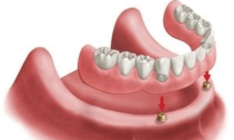 overdentures-two-implants