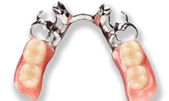 partial-denture-metal