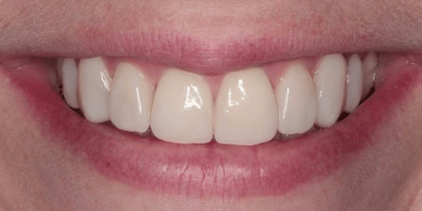 porcelain-veneers-after-1-san-clemente