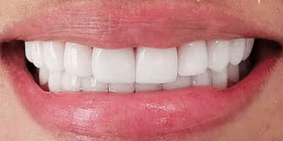 porcelain-veneers-after-2-san-clemente