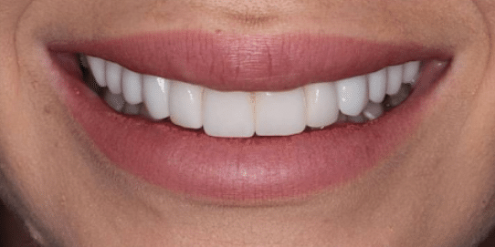porcelain-veneers-after-3-san-clemente