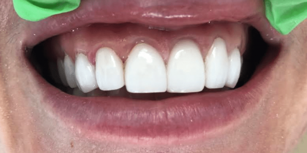 porcelain-veneers-after-4-san-clemente