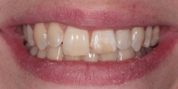porcelain-veneers-before-1-san-clemente