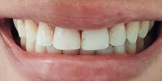 porcelain-veneers-before-2-san-clemente