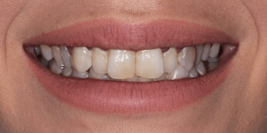 porcelain-veneers-before-3-san-clemente