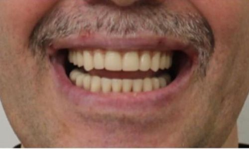 teeth-in-a-day-after