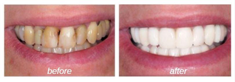 cosmetic-dentistry-porcelain-veneers
