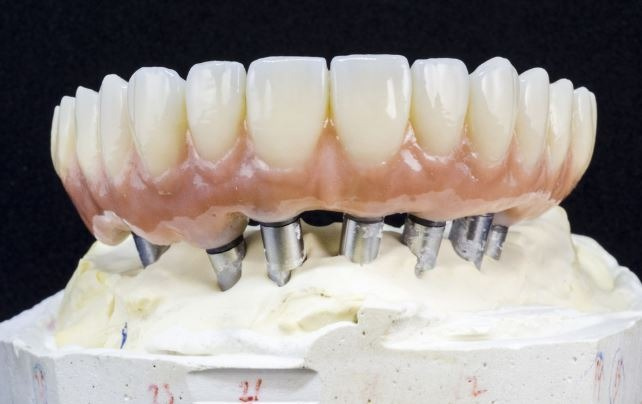 implant-dentistry-options