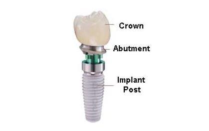 dental-implant-parts