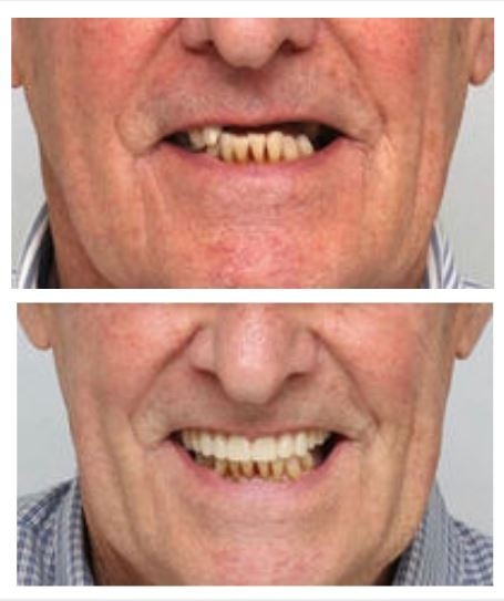 benefits-dental-implants