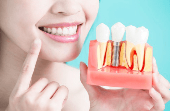 Dental-Implant-Treatment