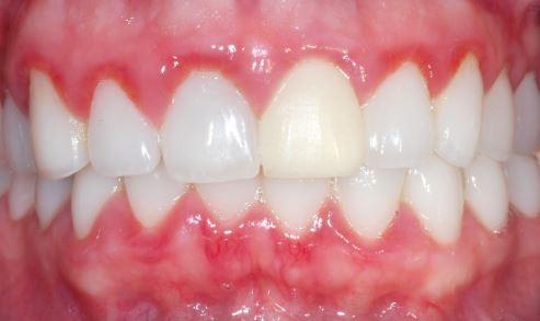 Gum-disease-gingivitis