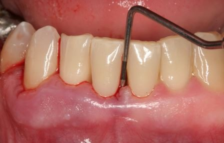 Gum-disease-periodontitis