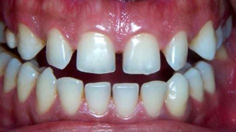 Invisalign-gaps-teeth