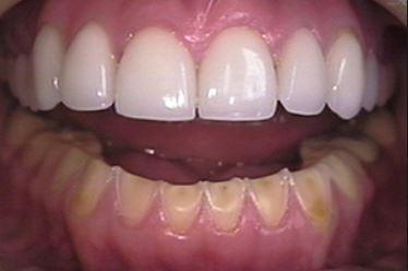 Nightguard-protects-crown-natural-teeth