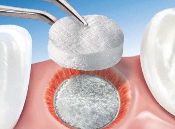 bone-graft-tooth-extraction