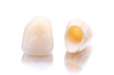ceramic-zirconia-crowns