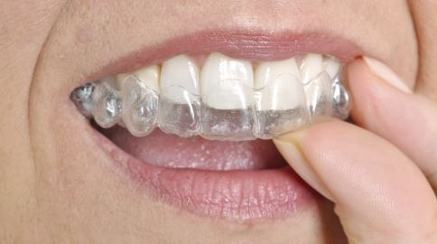 clear-aligner-Invisalign-treatment