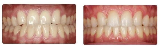 cosmetic-dentistry-invisalign-clear-aligners