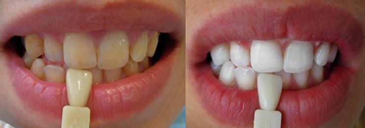 cosmetic-dentistry-teeth-whitening